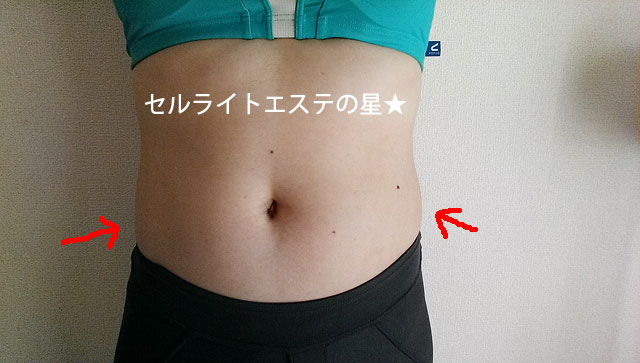 シーズ・ラボさんの体験エステ【口コミ】1週間で−8cm痩せました