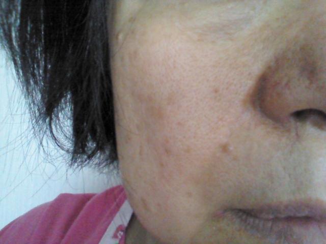 顔のたるみ対策のエステ【東京12選】効果を体験しよう