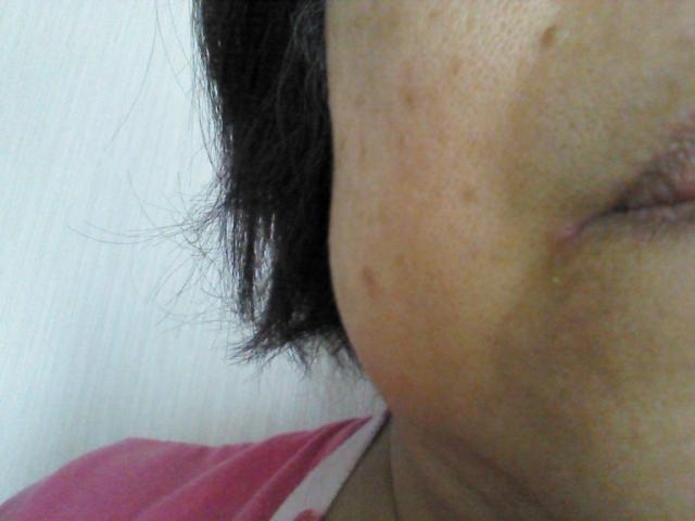 顔のたるみ対策のエステ【大阪12選】効果を体験しよう
